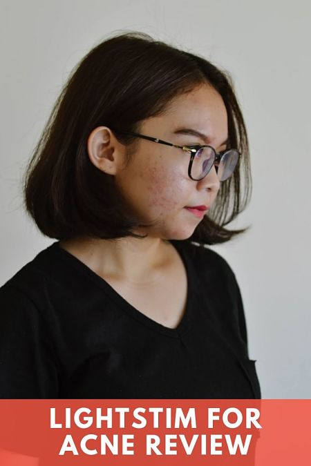 LightStim for Acne Review