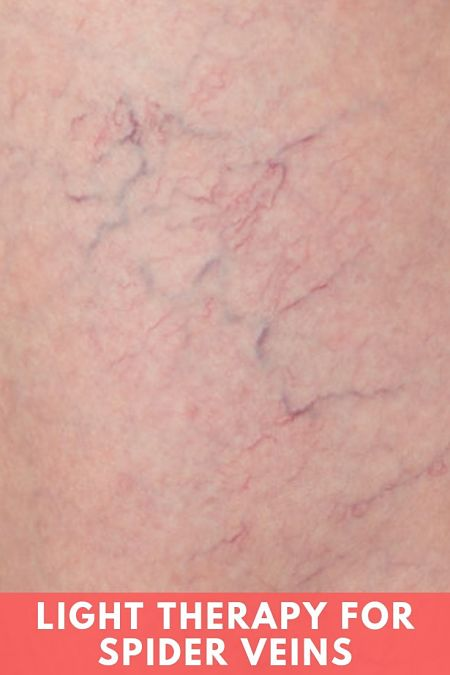 light therapy for spider veins