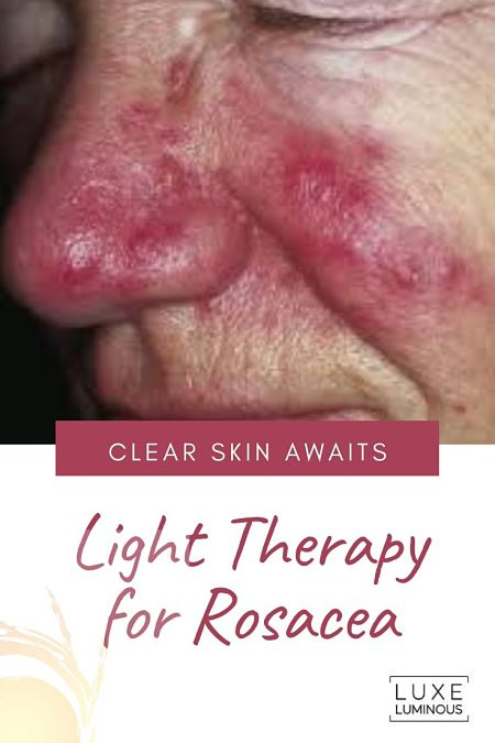 light therapy for rosacea